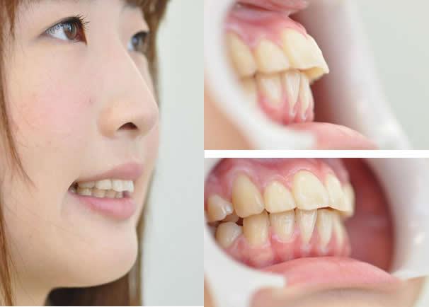 Go Plain!:英語で歯科矯正 -