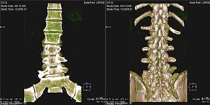 最新型CT装置